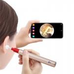 Ωτοσκόπιο OTO-01 5MP Wifi με 6 led για αφαίρεση του κεριού, σύνδεση με Android/Iphone